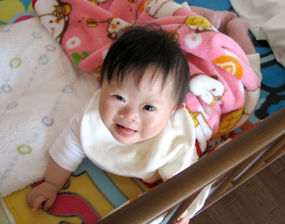ダウン症幼児期の特徴.jpg