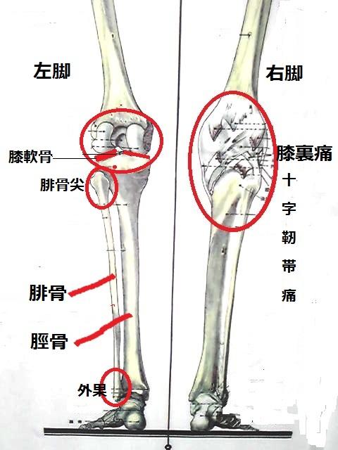 ひざ痛1.jpg