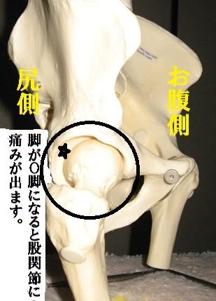 股関節痛1