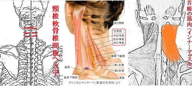 ストレス性首痛.JPG