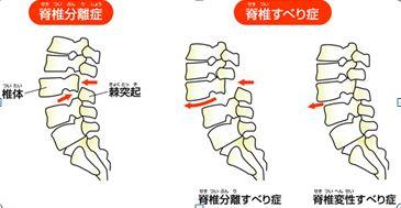 腰椎すべり症・分離症1.JPG