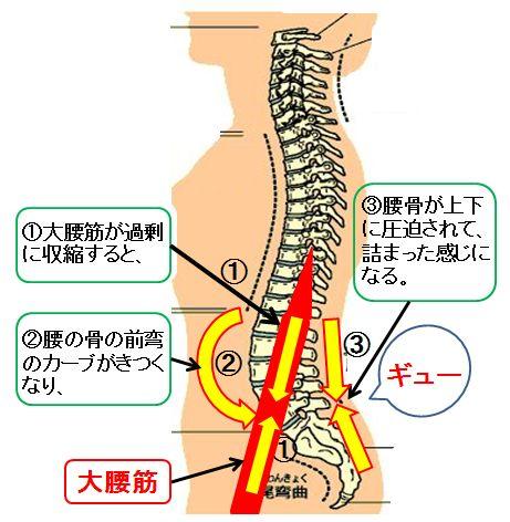腰痛の原因!大腰筋収縮