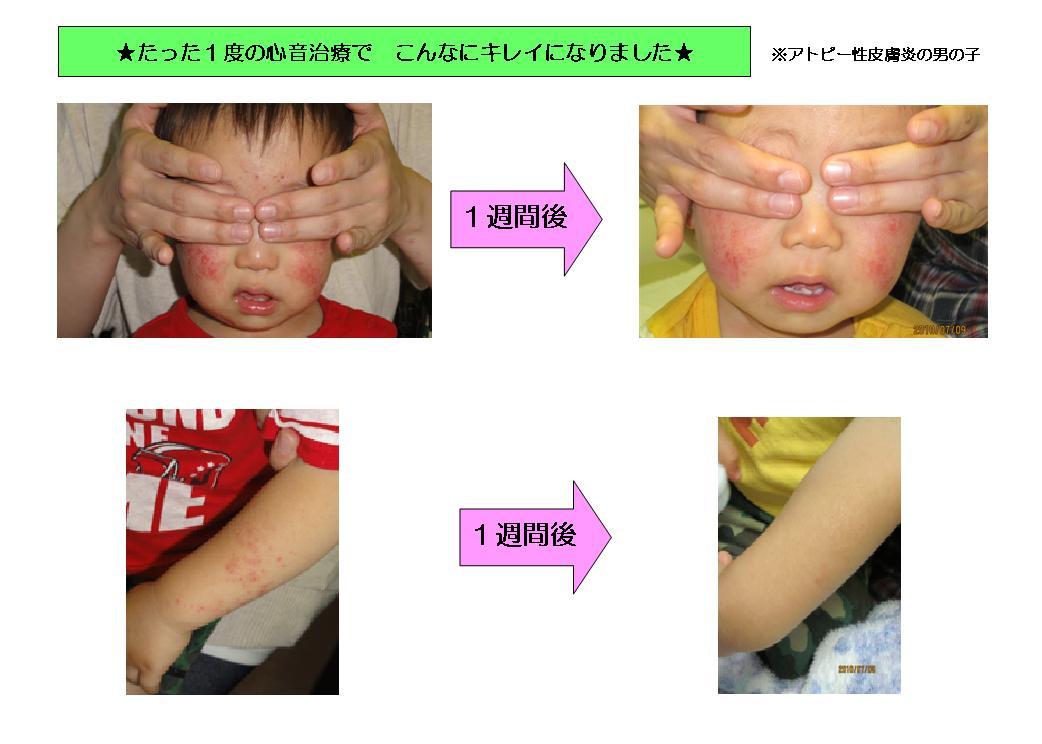 心音治療の効果(写真1)