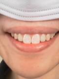 姫野カオルコ歯