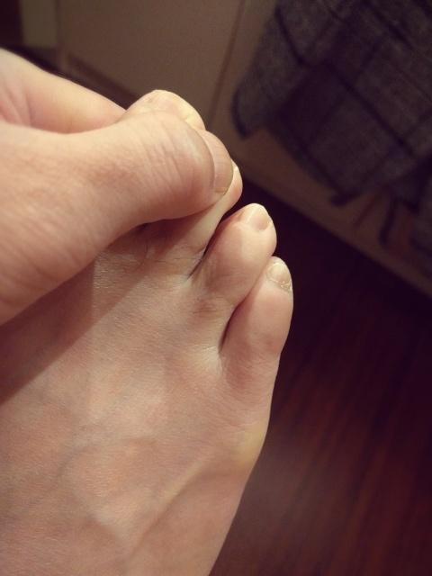 足の小指をぶつけた男性