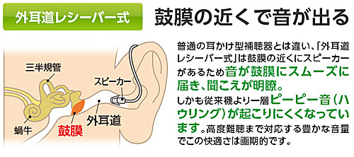 外耳道レシーバー式:鼓膜の近くで音が出る:アクトス外耳道レシーバー式デジタル補聴器
