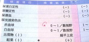 尿検査の結果