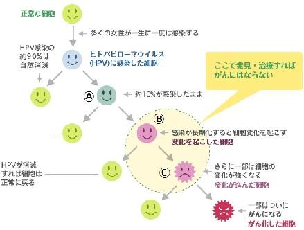 子宮頸がん 異形成 No.1 | smili...