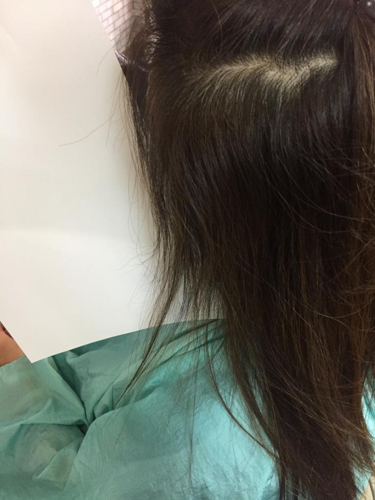 加齢毛 エイジングヘア ダメージヘア チリチリ ジリジリ ビビリ毛