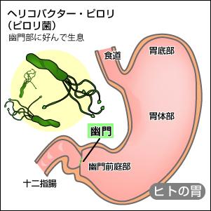胃・幽門に生息するピロリ菌