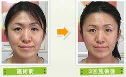 施術前後の顔の比較