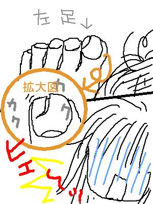足の爪が・・・