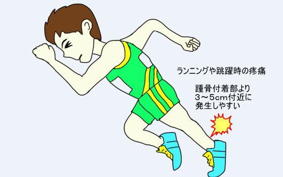 6bee378a10 ランニングや跳躍時の疼痛が主症状であり、損傷部の腫脹がみられる事が少なくなく、腱症や腱周囲炎は踵骨付着部より3~5cm付近に発生しやすいようです。