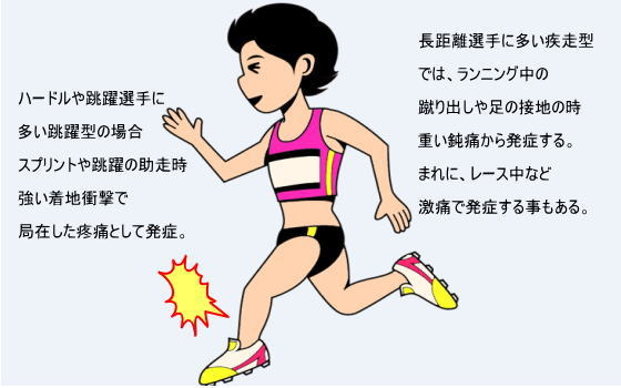 2438e95b53 疾走型ではランニング中や接地や蹴り出しに際して、下腿内側後面の重い鈍痛で発症する事が多いようです。まれにレース中や高強度のランニング中に急な激痛で発症する事  ...