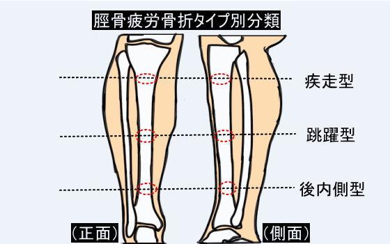 31aae3a011 跳躍型はスプリントや跳躍の助走時の強い着地衝撃に際して、下腿全面の比較的局在した疼痛として発症する事が多く、初期には高強度のトレーニング時しか疼痛を自覚  ...