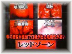 膿栓と扁桃腺の写真画像