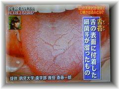 舌苔の写真画像