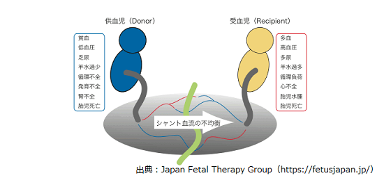 双胎間輸血症候群,確率,障害,後遺症