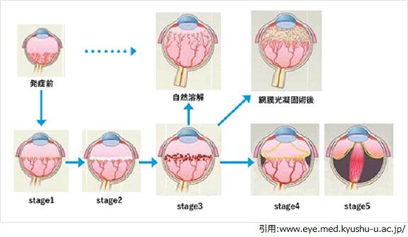 未熟児網膜症,早産児,眼科,目の病気