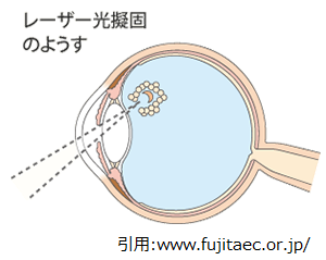 未熟児網膜症,レーザー治療,早産児,眼科,目の病気,レーザー治療,レーザー手術