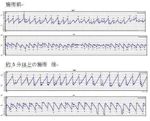 ビデオ式眼振計測器による視運動性反射