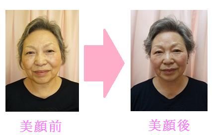美顔変化表.png