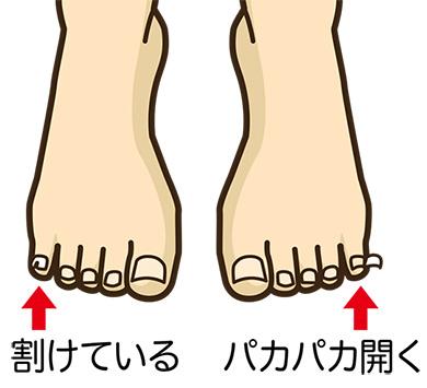 足のイラスト 爪