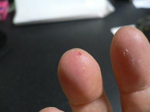 噛まれた指