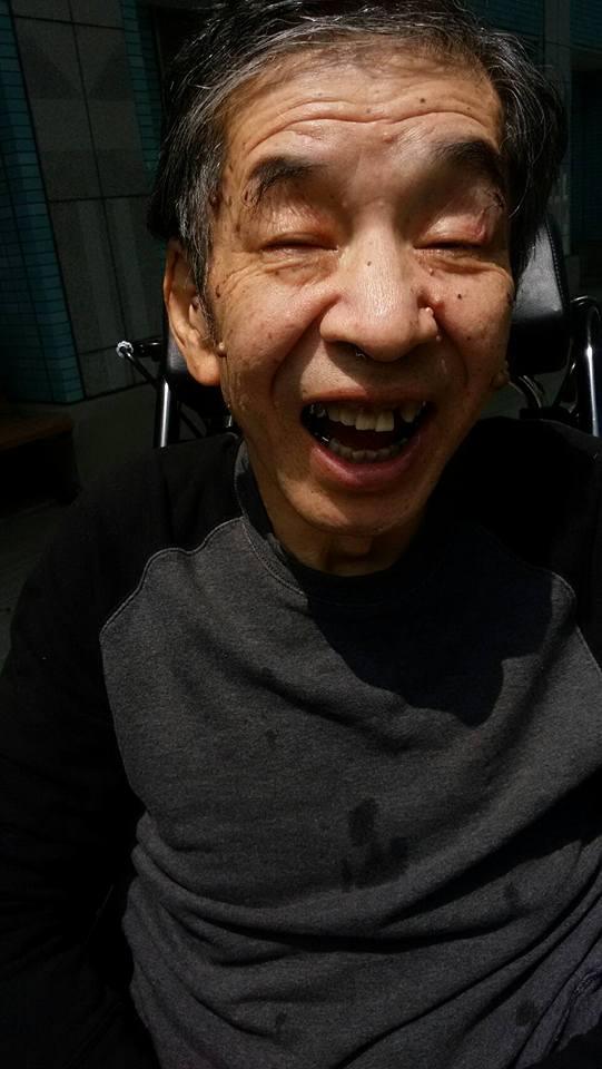 2017年7月7日病院で手にはめられるミトンをかじって取ろうとして歯が折れた。