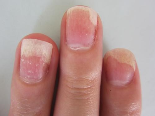 しかし、ここにきて剥離部分の爪甲と爪床は接着して上昇してきた。体質改善されてきたことが分かる。爪乾癬のような点状陥凹が見える。 (写真)(左手)