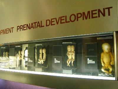 胎児の標本