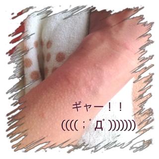 new arrival e70c0 0eaa2 やまい・きず!?】突然金属アレルギー? | おれ飯(@時々つぶ天 ...