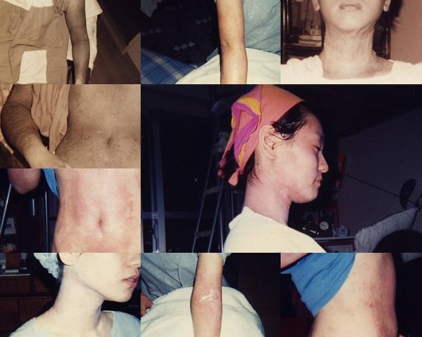 沙月22歳症例