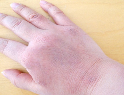 2013年12月手湿疹