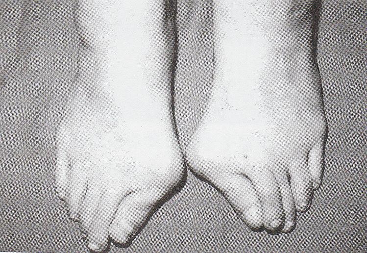 外反母趾、偏平足、タコ、ウオノメ、合う靴がない、足が痛い。シューフィッターが足に合った靴をお見立て。楽に歩ける靴。