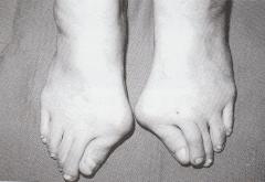 外反母趾で足が痛くて合う靴がない。岐阜、愛知、三重、長野、高山、郡上、多治見、土岐、瑞浪、恵那、中津川、名古屋市の足と靴の相談。インソール、中敷き。オーダーメイド靴