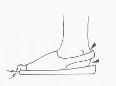 足に合わないために起る、タコ、魚の目、ハンマートウ、外反母趾、靴ずれ、足底筋膜炎の痛み
