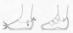 子供靴、上履き、足に合っていないと、踵がブカブカ、つま先は窮屈で子供の足も、外反母趾、巻爪、ハンマートウ、ウオノメ、タコ、陥入爪、土踏まずが痛い、足の裏が痛い、踵が痛いなど足のトラブルや痛みを引き起こします。そうならないために、お子様の足に合った靴選びをしましょう。足にいい子供靴、健康にいい子供靴、上履きは岐阜県で夫婦で上級シューフィッターの三喜屋靴店へご相談ください。岐阜県内はもちろん、愛知県からも多くの皆様にご相談いただいています。