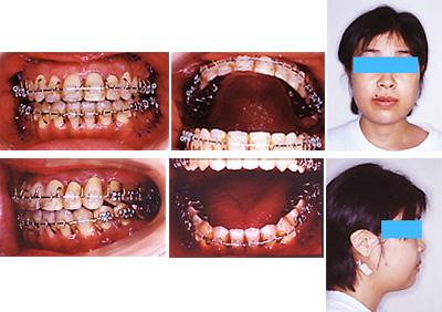手術後矯正歯科治療開始