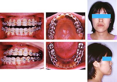 手術前矯正歯科治療の終了