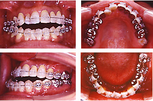 手術前矯正歯科治療の開始