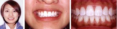 下の歯のチェック2
