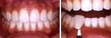 下の歯のチェック1