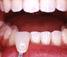 下の歯のホワイトニング開始