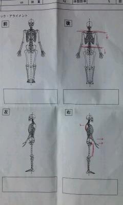 FMS(スタティック・アライメント診断)
