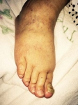 伯母の右足後9月4日