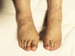 伯母の両足後9月4日