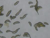 花粉の観察