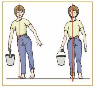 「股関節 変形」の画像検索結果
