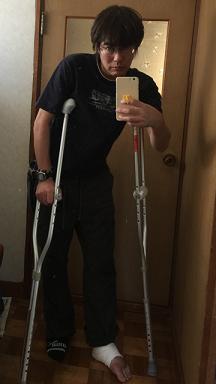 足の腫れ2
